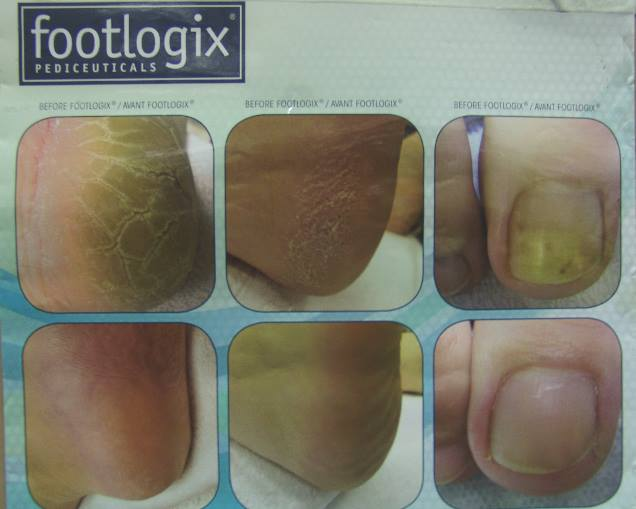 footlogic Anti-fungal toe nail care